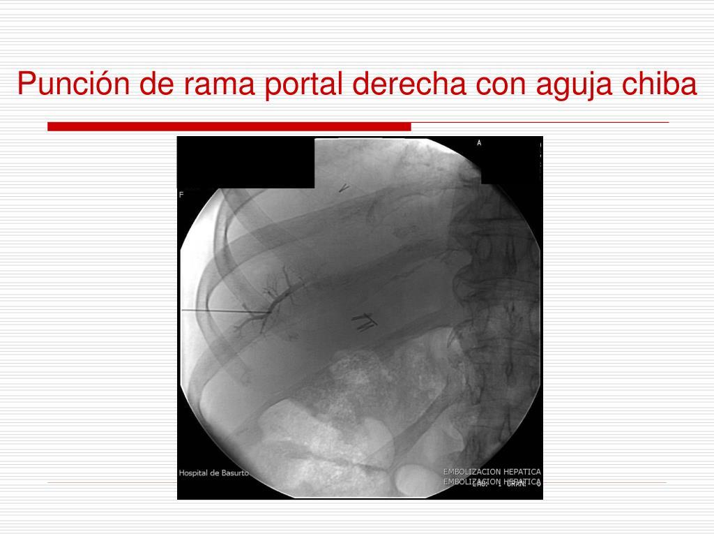 Punción de rama portal derecha con aguja chiba