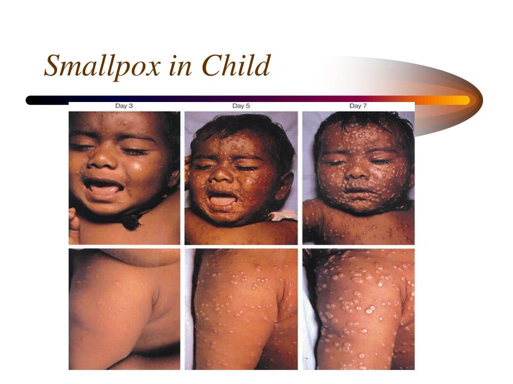 Smallpox in Child