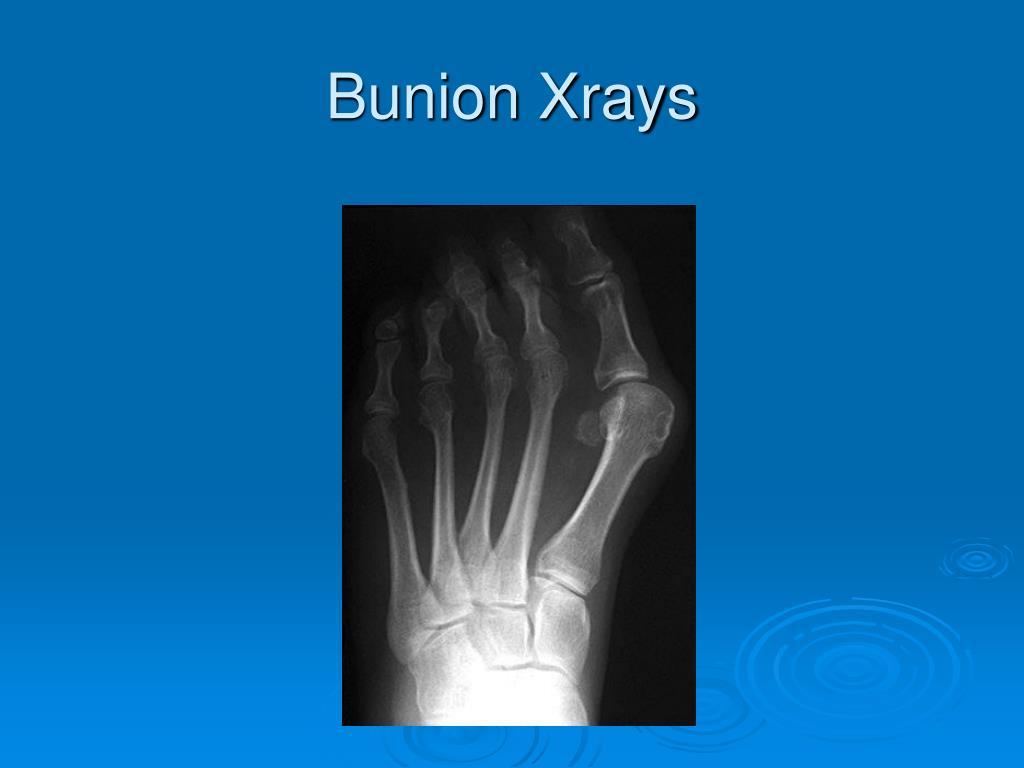 Bunion Xrays