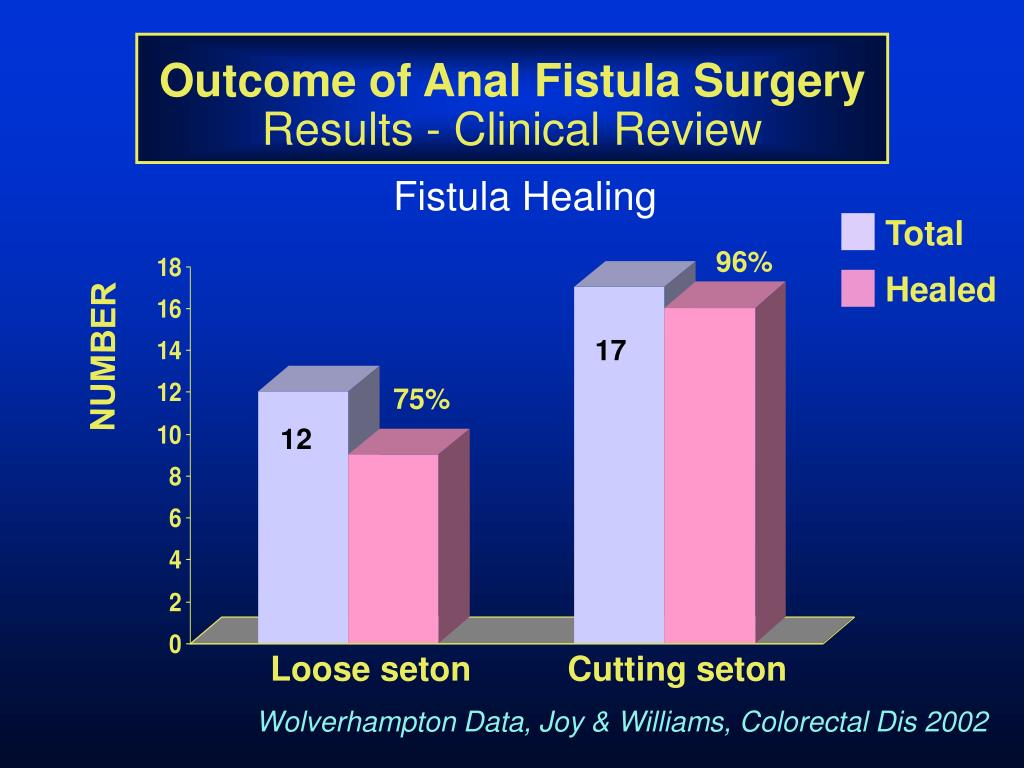 anal fistula and et al An anal fistula is an inflammatory tract between the anal canal and the skin the 4 categories of fistulas, based on the relationship of fistula to sphincter muscles, are intersphincteric, transsphincteric, suprasphincteric, and extrasphincteric.