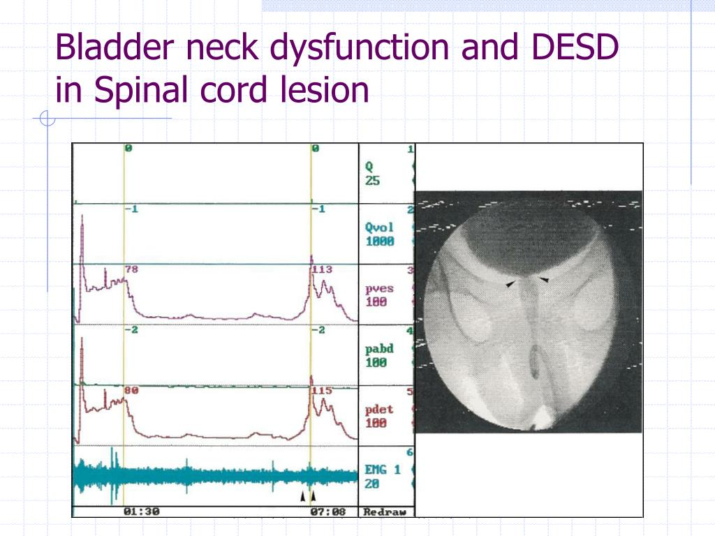 Bladder neck dysfunction and DESD in Spinal cord lesion