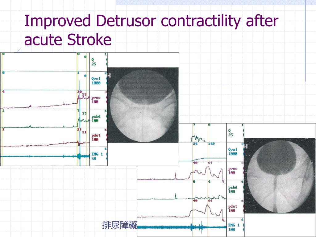 Improved Detrusor contractility after acute Stroke