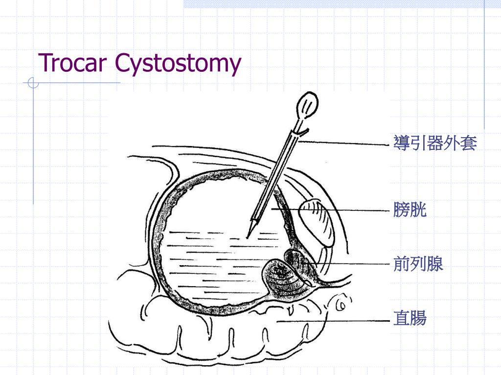 Trocar Cystostomy
