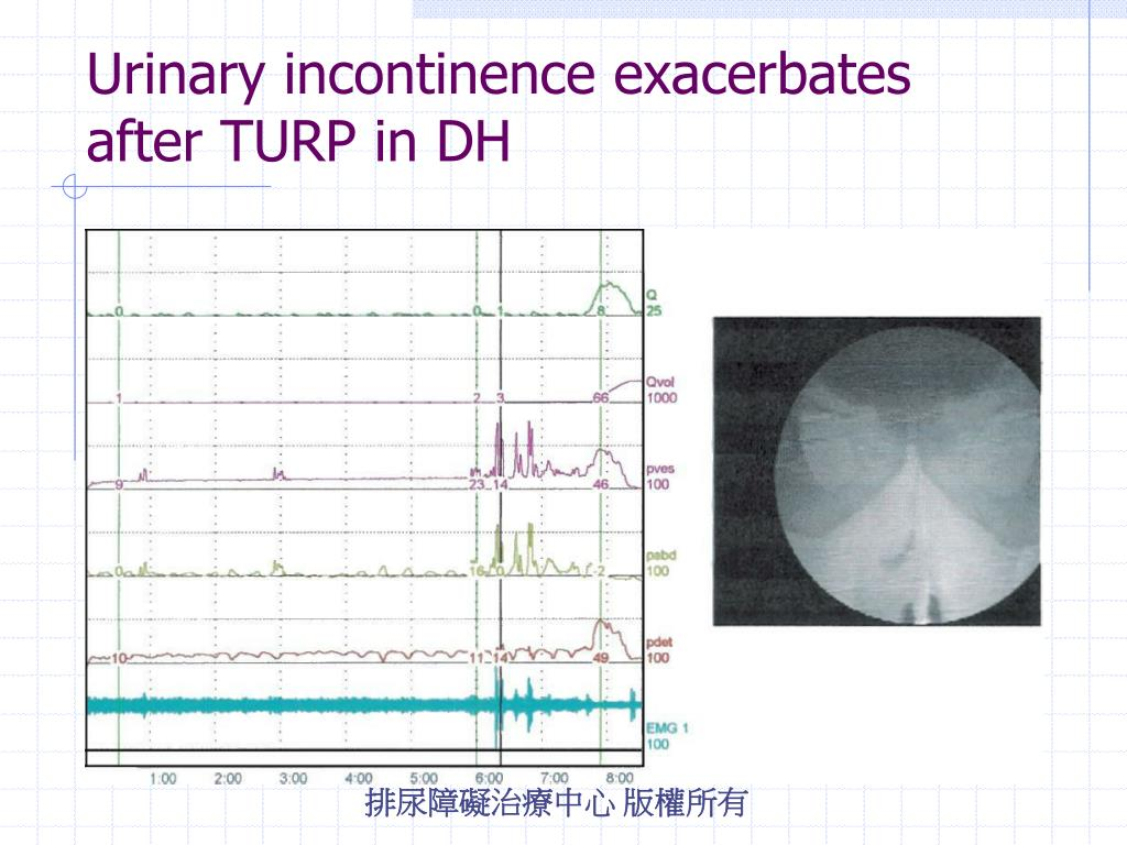 Urinary incontinence exacerbates after TURP in DH