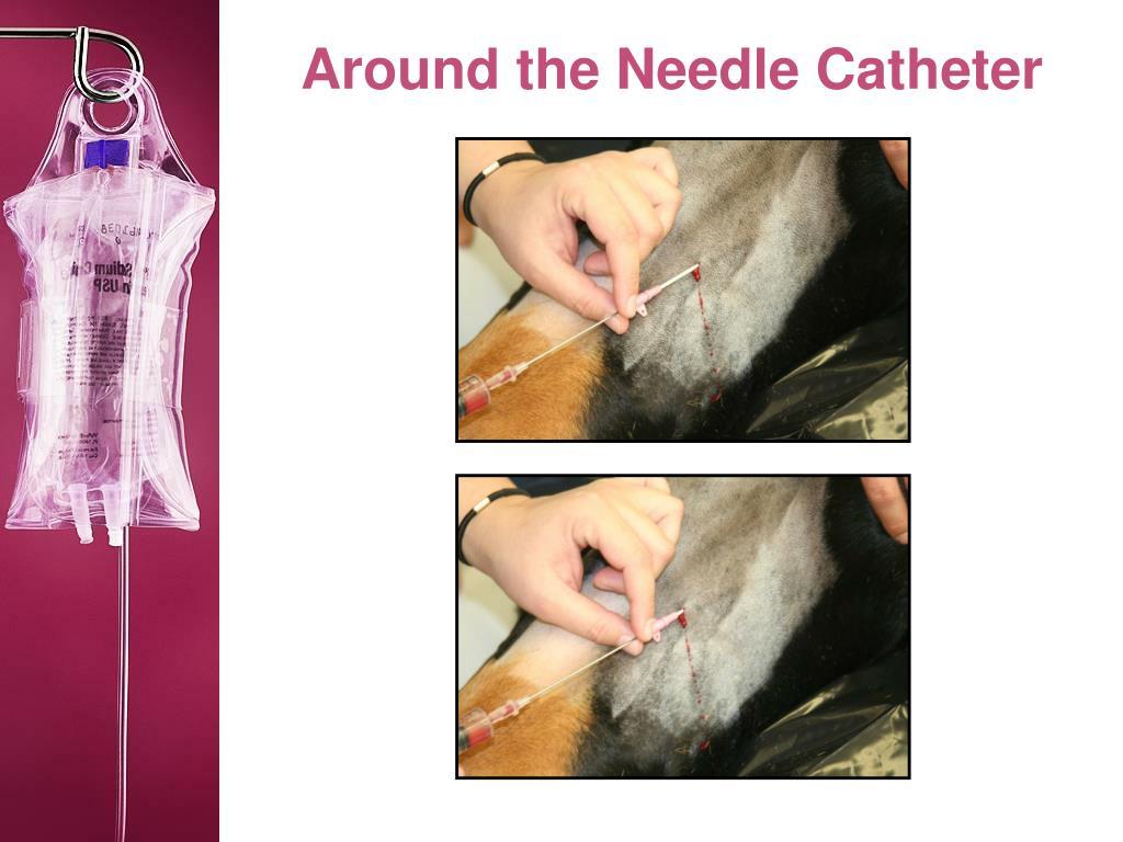 Around the Needle Catheter