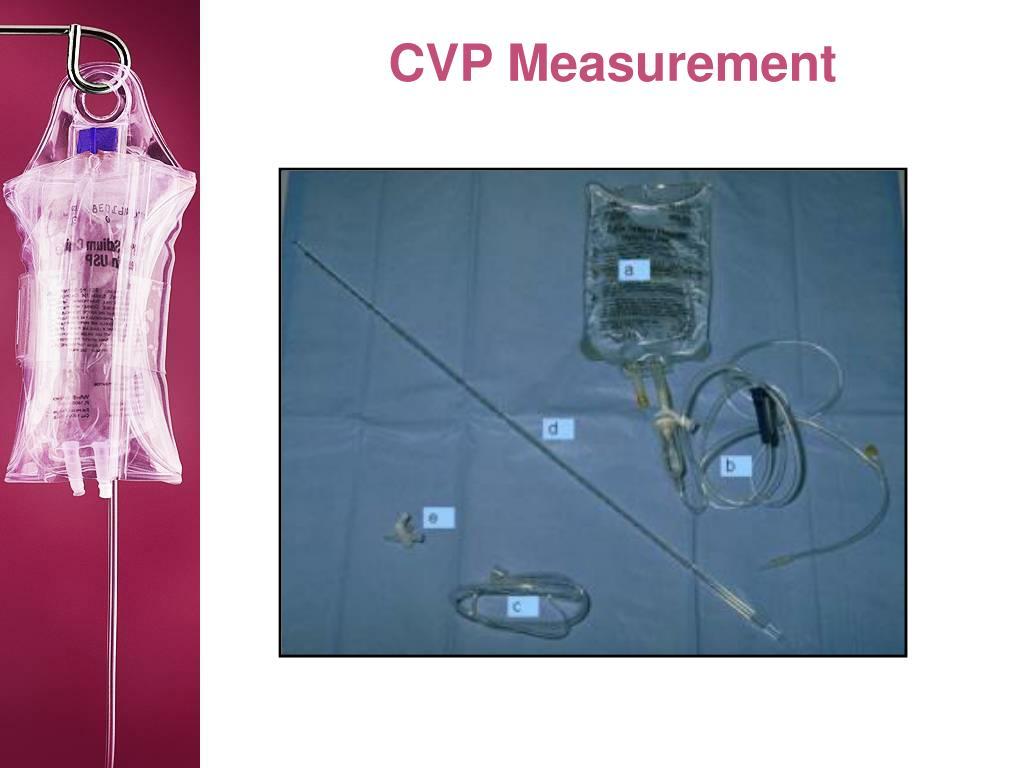 CVP Measurement