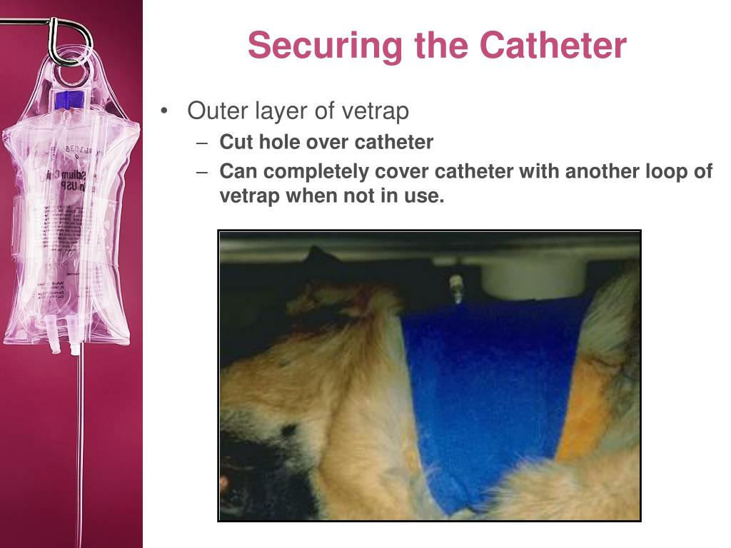 Securing the Catheter