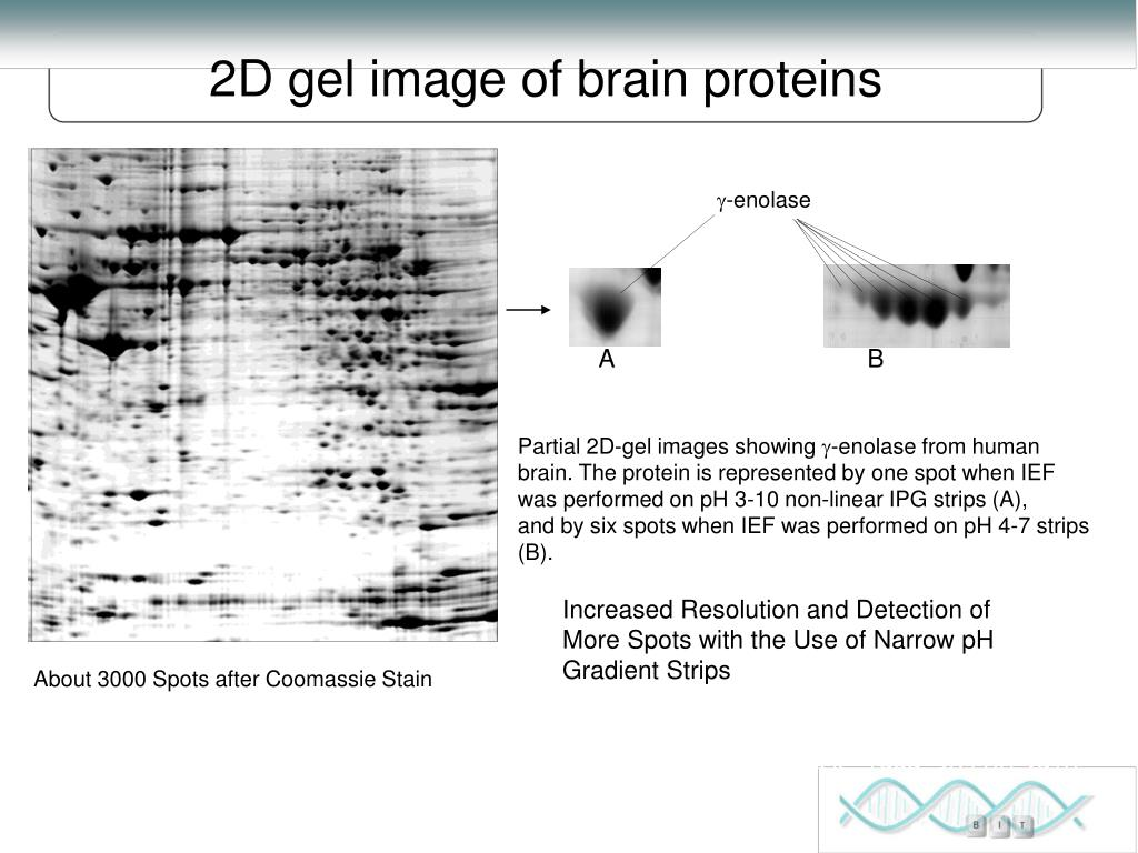 2D gel image of brain proteins