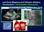 left atrial mapping and catheter ablation visualization intracardiac ultrasound21