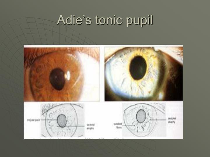 Adie's tonic pupil
