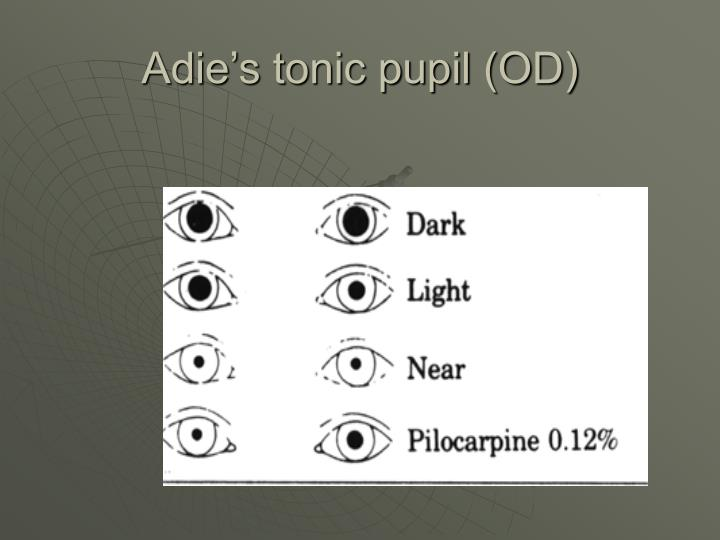 Adie's tonic pupil (OD)