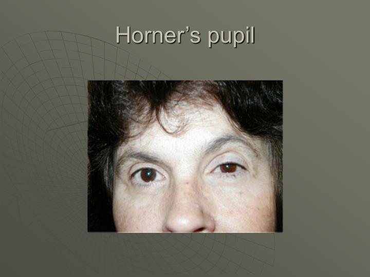 Horner's pupil