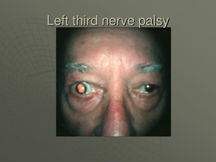 Left third nerve palsy
