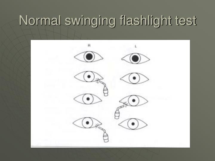 Normal swinging flashlight test