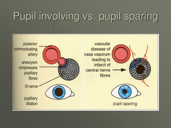 Pupil involving vs. pupil sparing