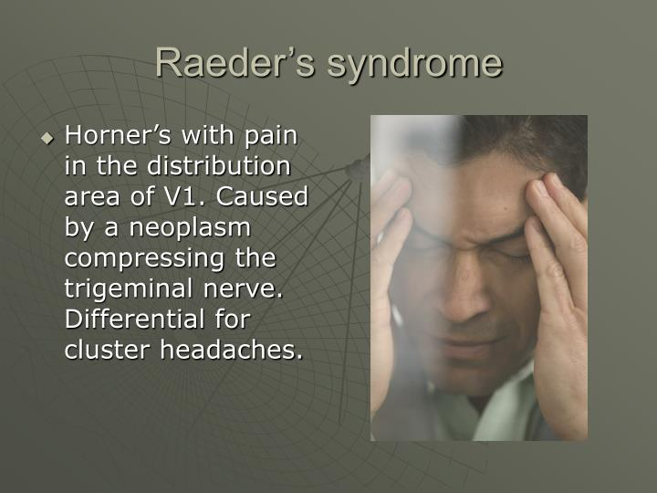 Raeder's syndrome