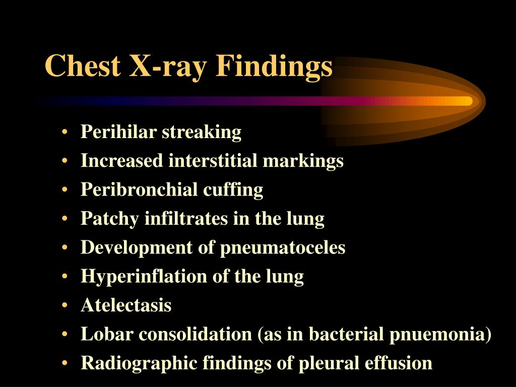 Chest X-ray Findings