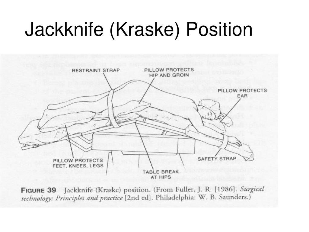 Jackknife (Kraske) Position