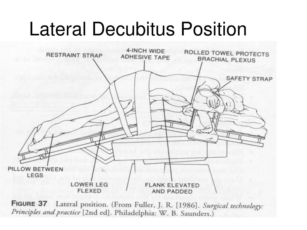 Lateral Decubitus Position