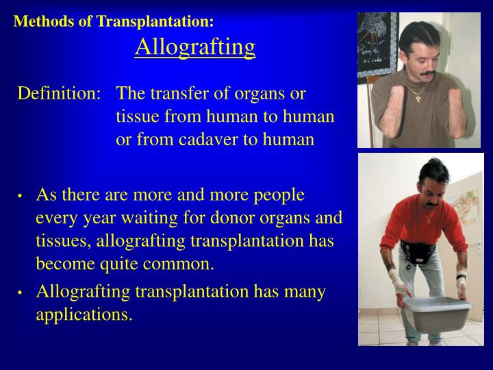 Methods of Transplantation: