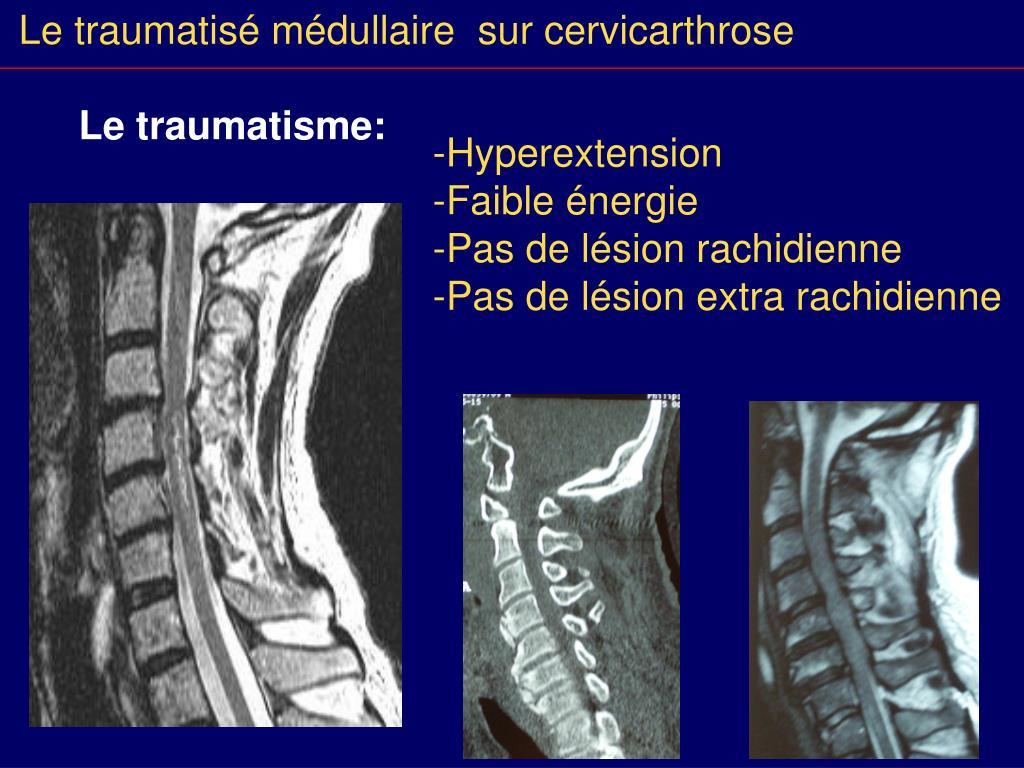 Traumatisme vertebro medullaire