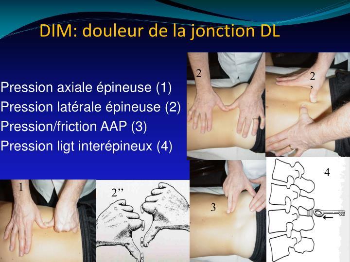 DIM: douleur de la jonction DL
