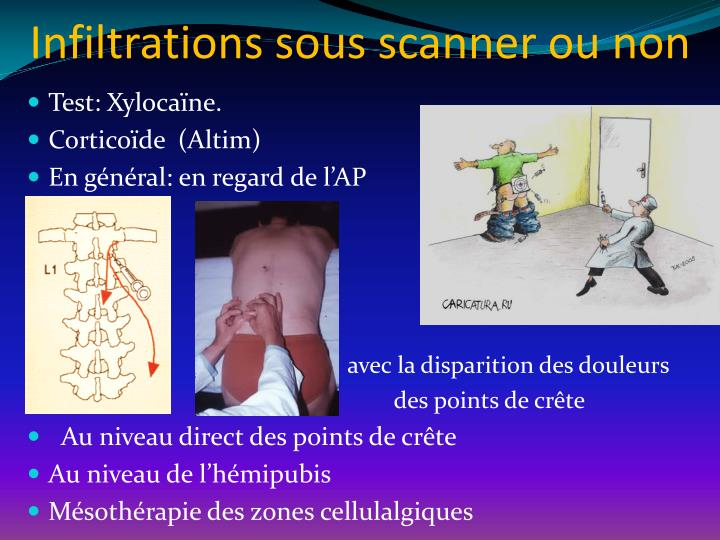 Infiltrations sous scanner ou non