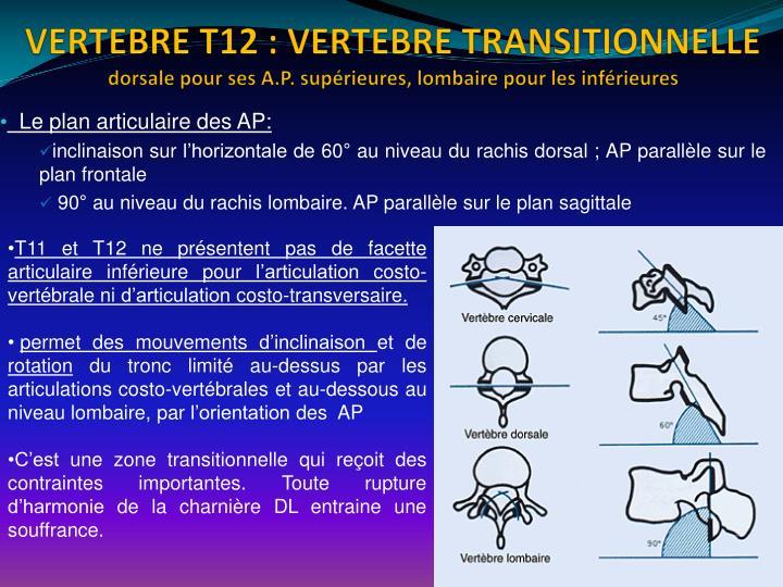 VERTEBRE T12: VERTEBRE TRANSITIONNELLE