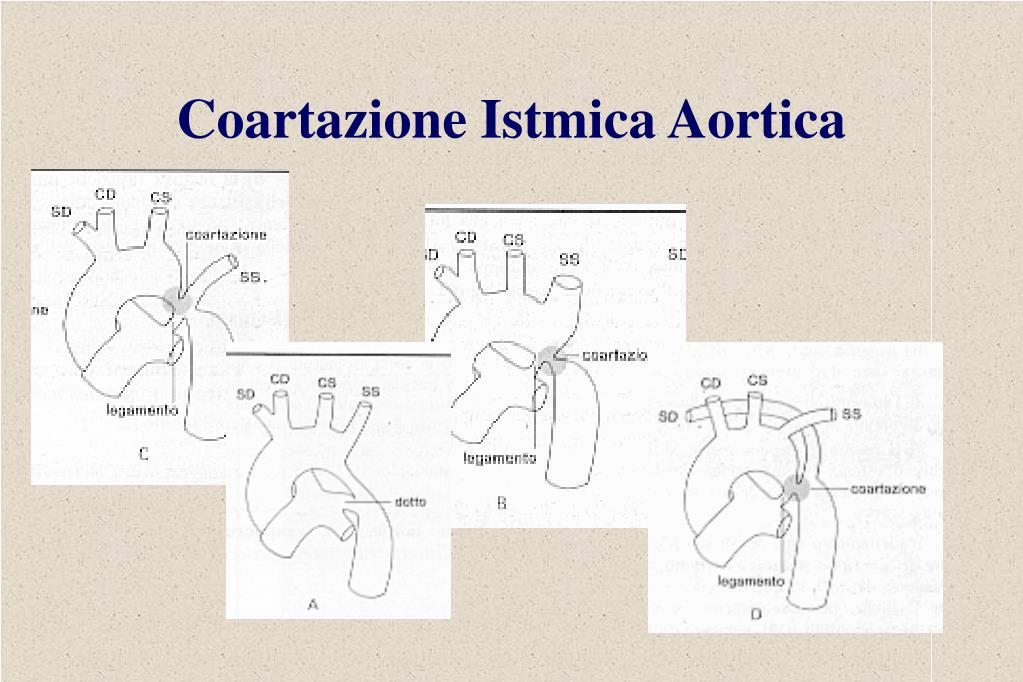 Coartazione Istmica Aortica