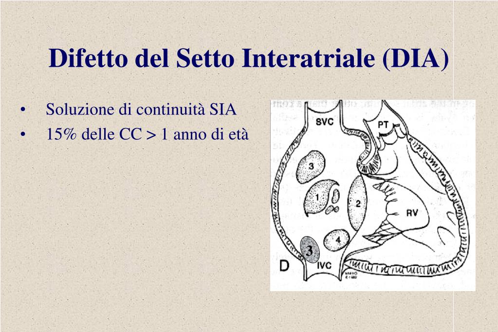 Difetto del Setto Interatriale (DIA)
