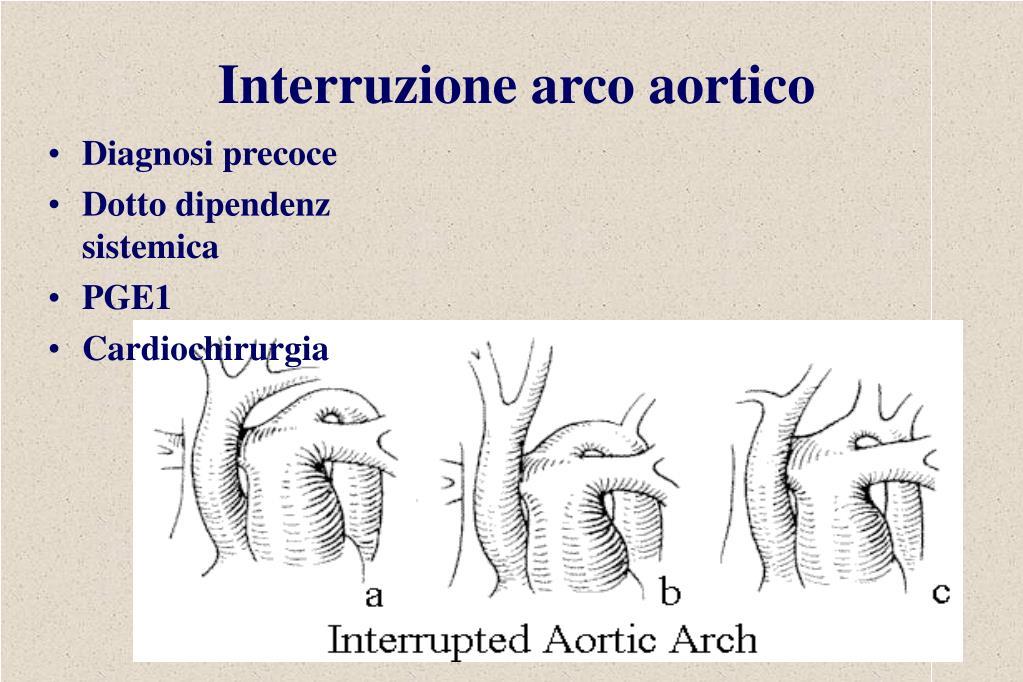 Interruzione arco aortico