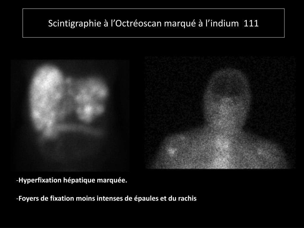 Scintigraphie à l'Octréoscan marqué à l'indium  111