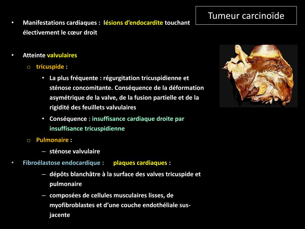 Tumeur carcinoïde