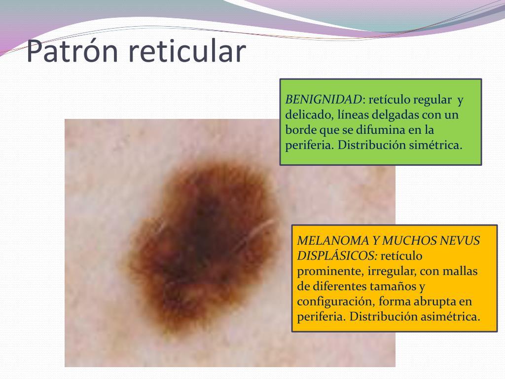 Patrón reticular