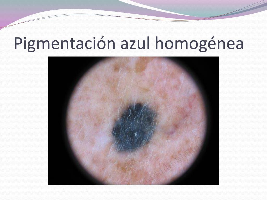 Pigmentación azul homogénea