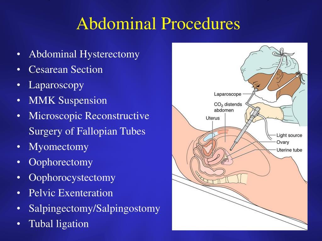 Abdominal Procedures