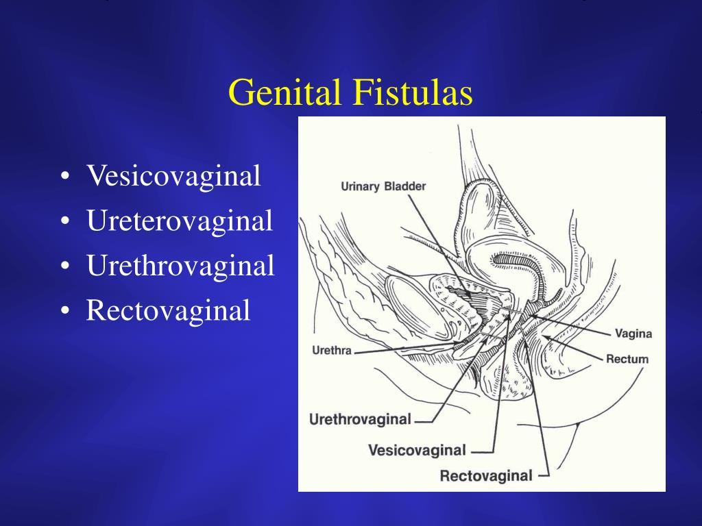 Genital Fistulas
