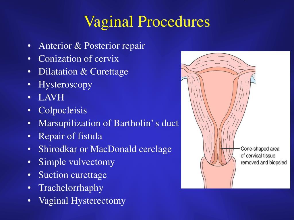 Vaginal Procedures