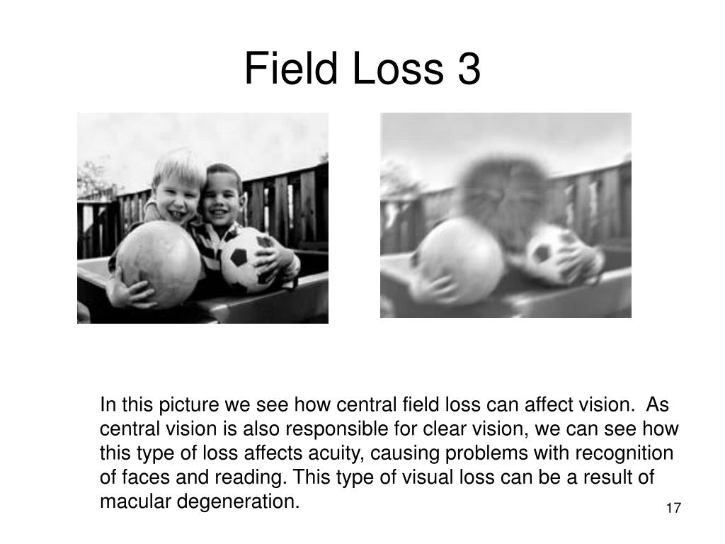 Field Loss 3