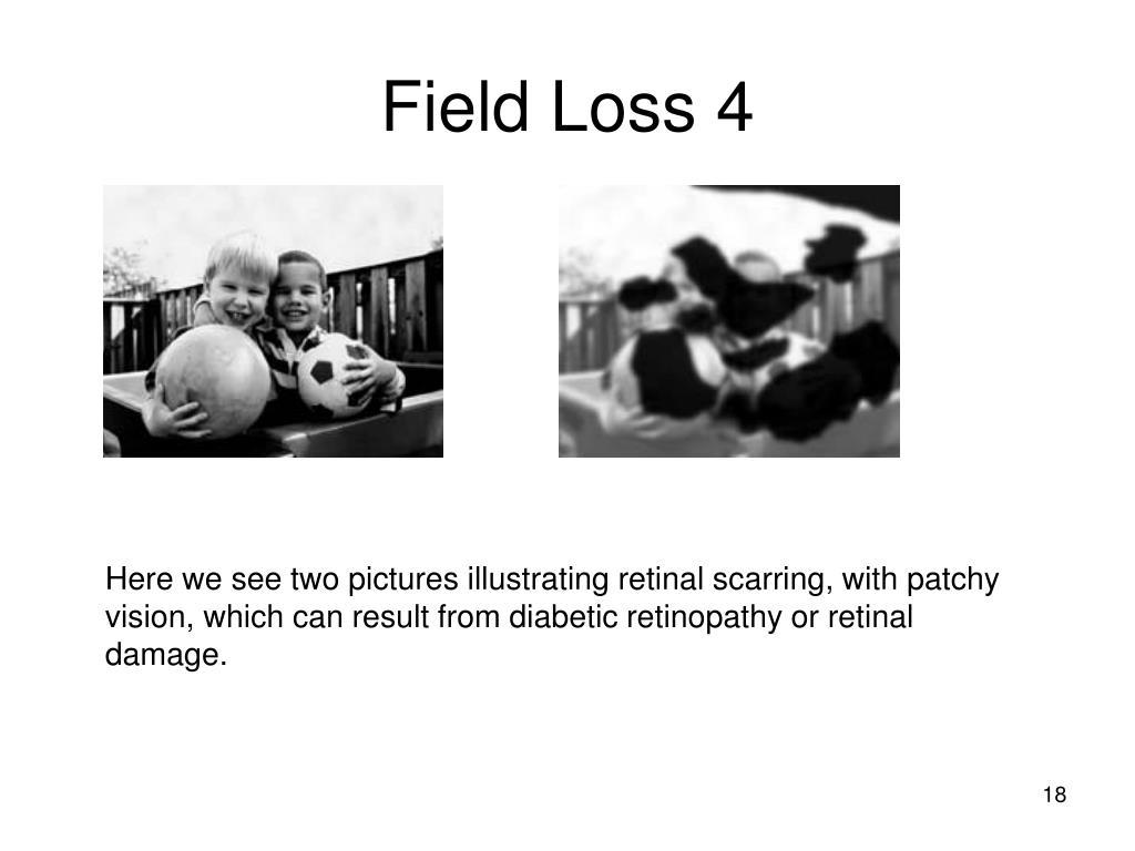 Field Loss 4