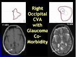 right occipital cva with glaucoma co morbidity
