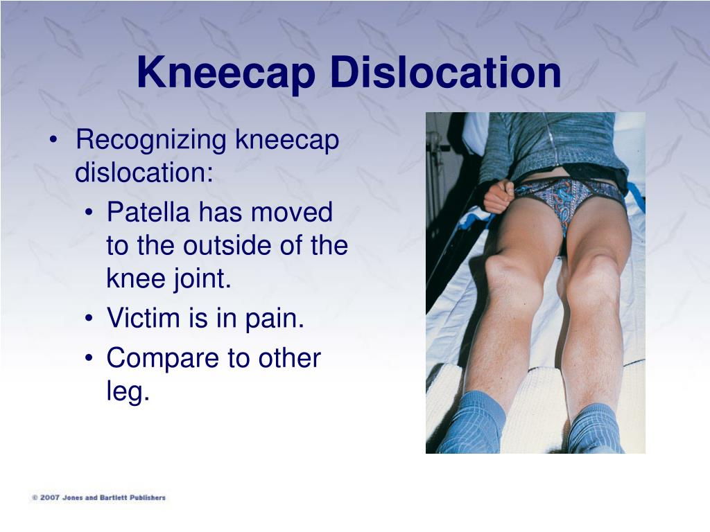 dislocation of the knee essay