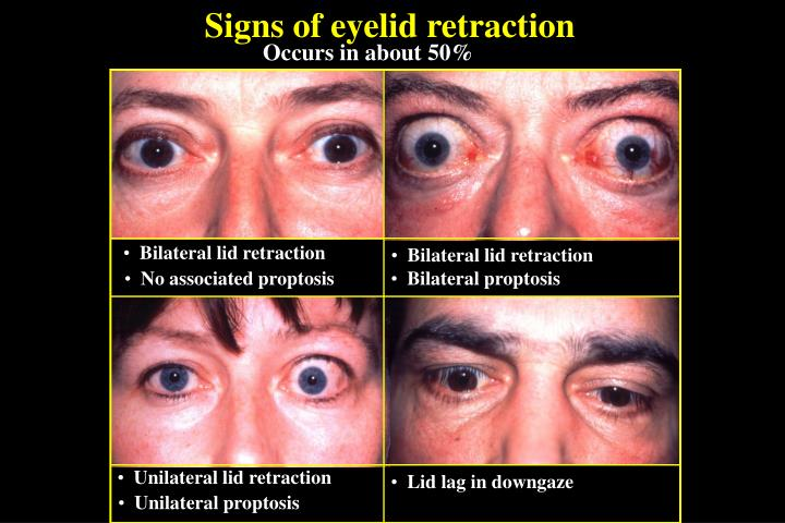 Signs of eyelid retraction