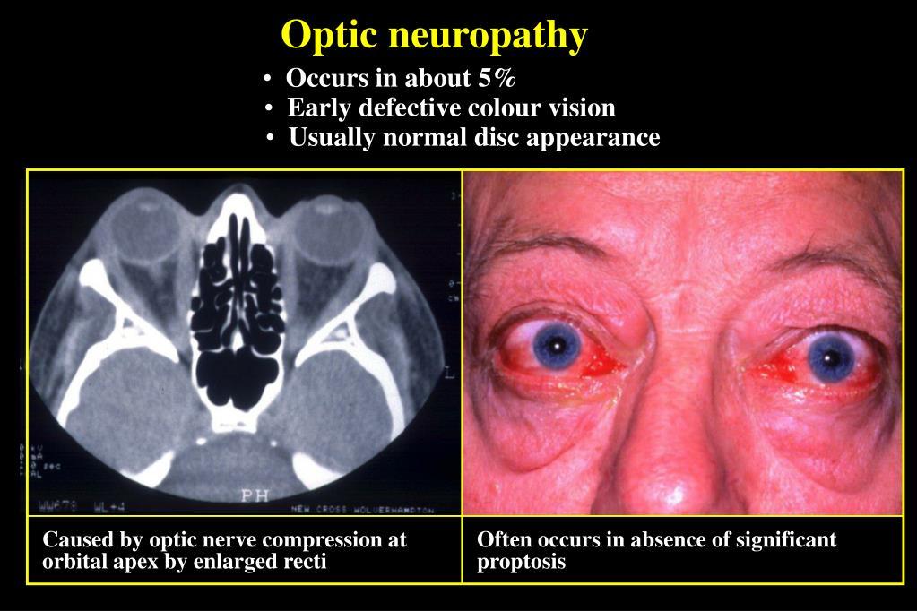 Optic neuropathy