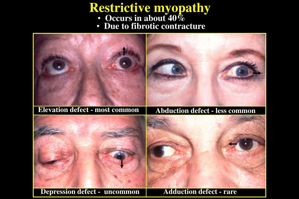 Restrictive myopathy