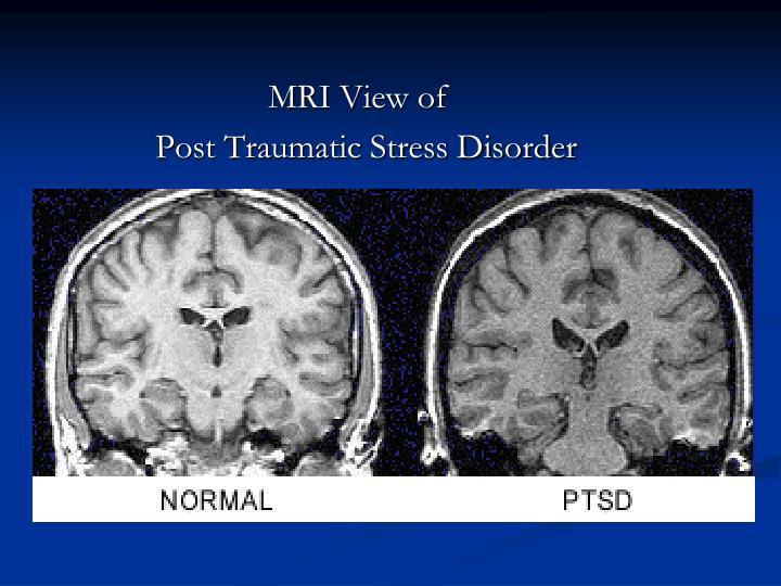 MRI View of