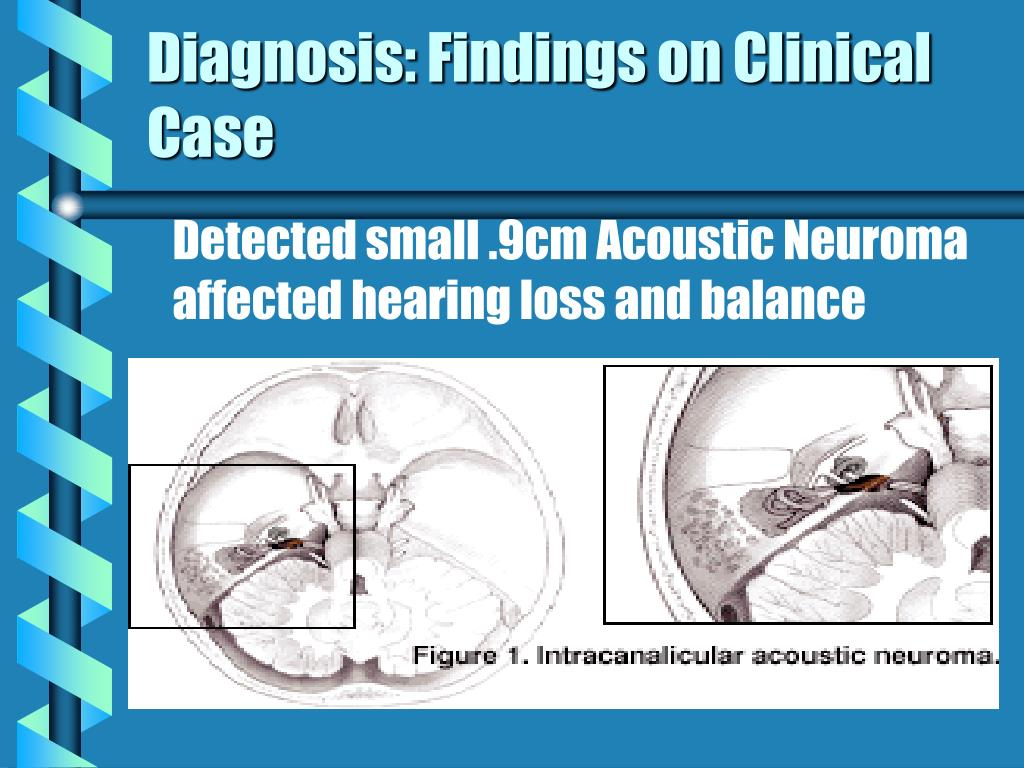 PPT - Cranial Nerve Lesion Acoustic Neuroma PowerPoint ...