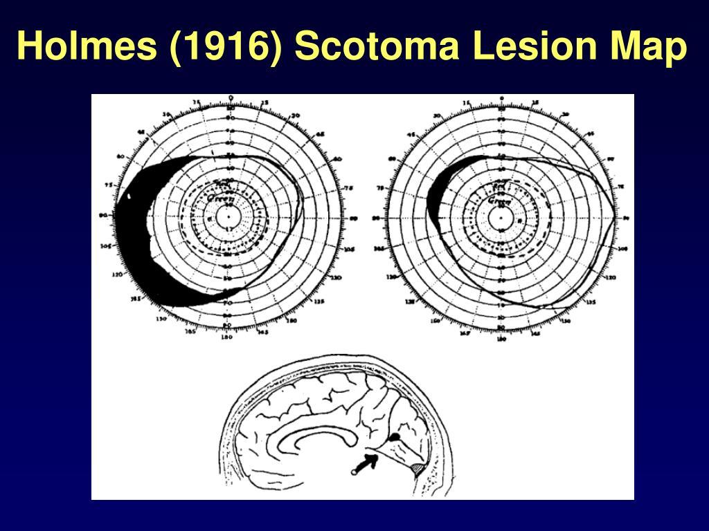 Holmes (1916) Scotoma Lesion Map