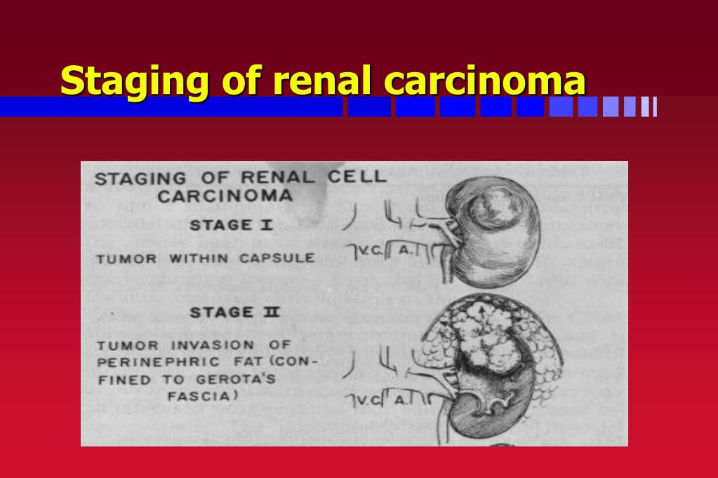 Staging of renal carcinoma