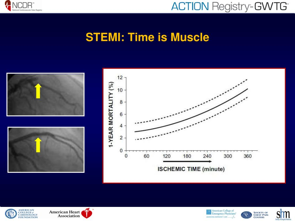 STEMI: Time is Muscle